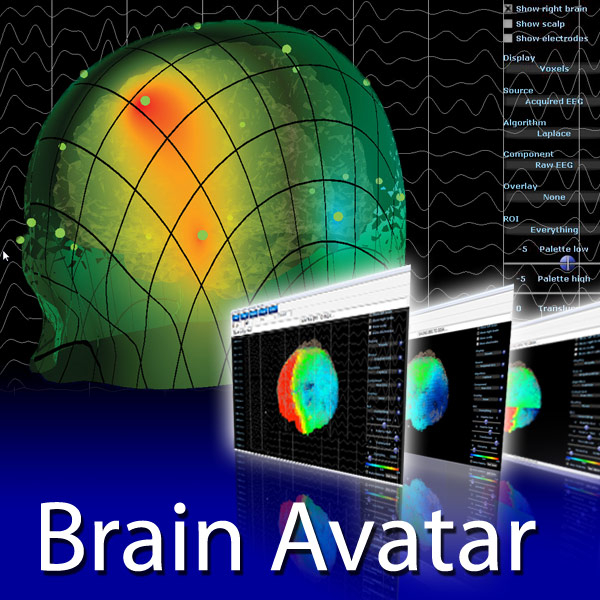 BrainAvatar 4.0 Upgrade von 3.0 +  LLP für Atlantis (Upgrade-Bundle)