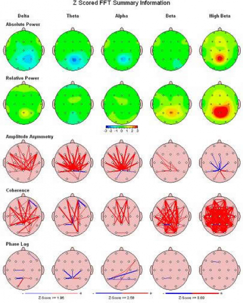 NeuroGuide Software for BrainMaster QEEG